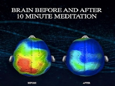 02-brain_on_meditation